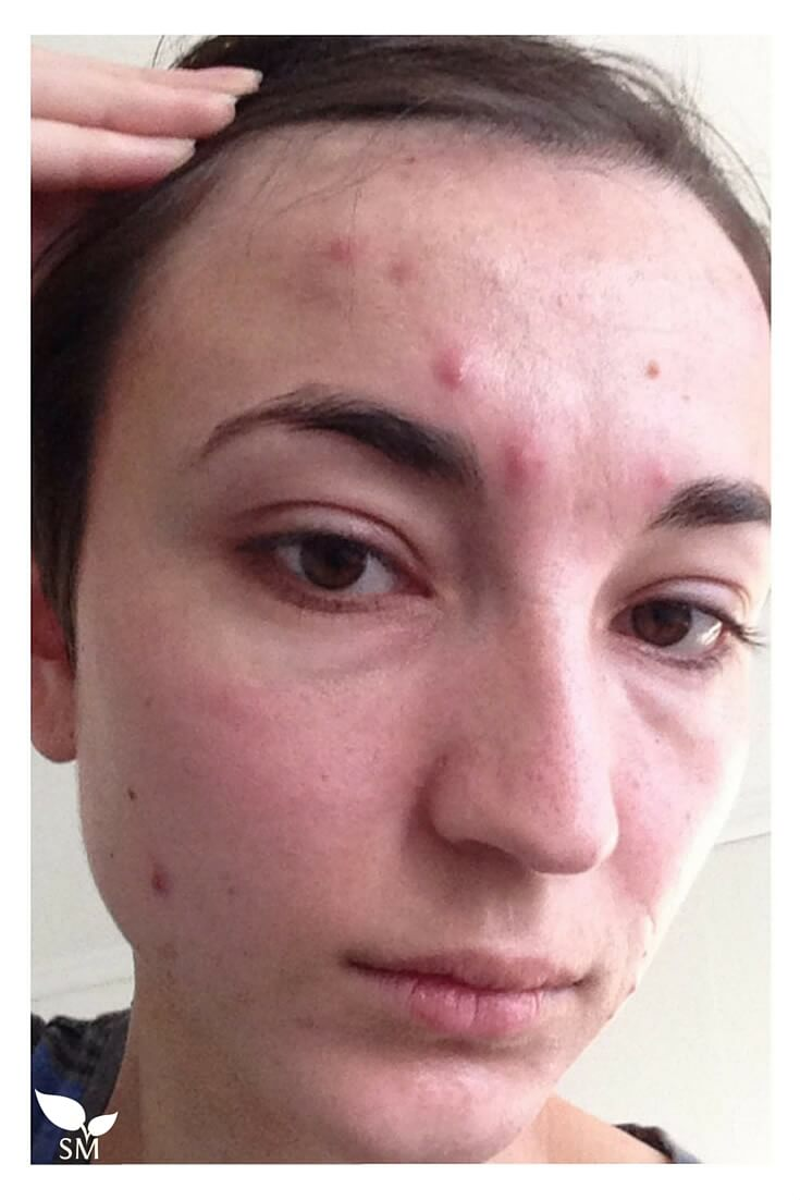 If you have struggled with acne and think you've tried it 'all', you likely haven't tried this simple and effective DIY that has provided huge relief for Diana who struggles with finicky acne- Scratch Mommy
